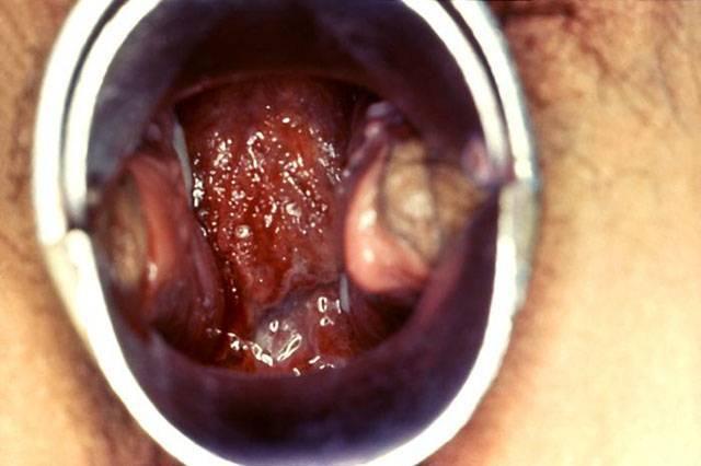 Chlamydia Mouth